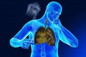 Халотерапията помага срещу вредите от тютюнопушенето